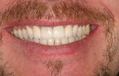Dentist Explains Veneers for Rochester Hills Patients