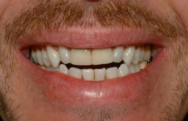Veneers - Explained by Dentist in Utica, Michigan
